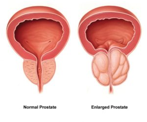 non-surgical-prostate-treatments-los-angeles